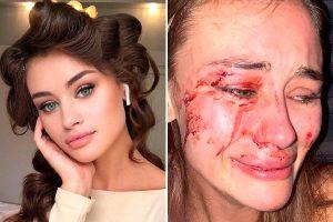 Top model Daria Kyryliuk, 24, brutally beaten by security guards at Turkish nightclub
