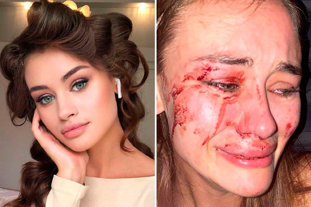 Top model Daria Kyryliuk, 24, brutally beaten by security guards at Turkish nightclub