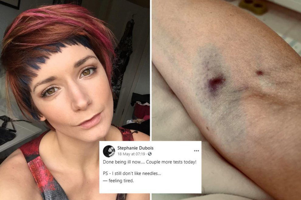 Model Stephanie Dubois reveals she felt 'horrendous' & showed bruised arm in last posts before dying after Covid jab